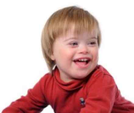 are there different severities of down syndrome